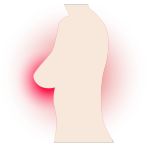 乳癌が転移しているのに、こんなケースはみたことがない